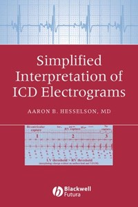 Simplified Interpretation of ICD Electrograms   Aaron B. Hesselson  