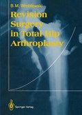 Revision Surgery in Total Hip Arthroplasty   Boguslaw M. Wroblewski  