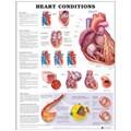 Heart Conditions   auteur onbekend  