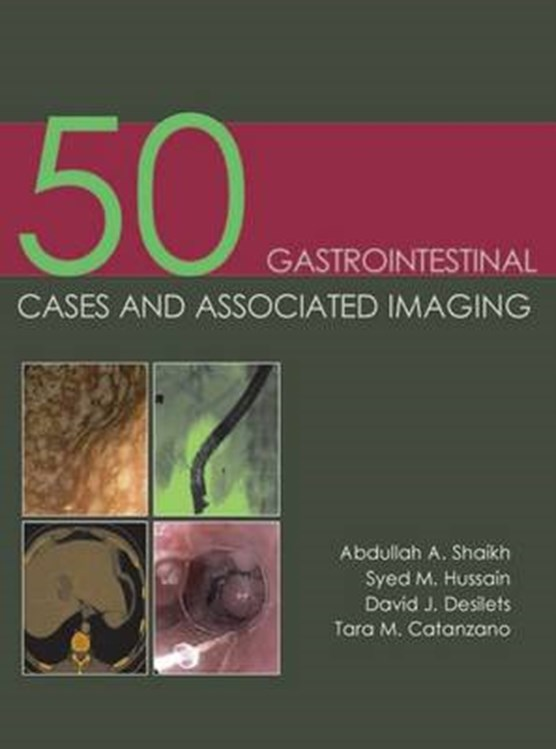 50 Gastrointestinal Cases & Associated Imaging