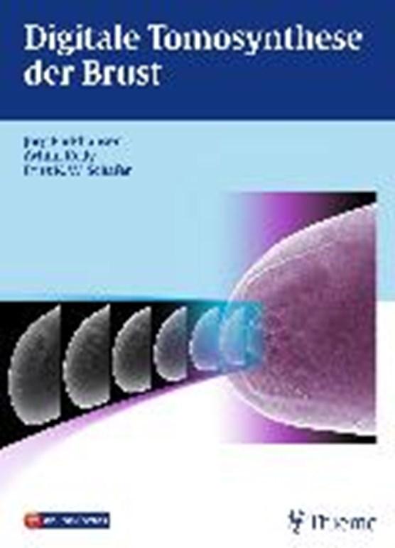 Digitale Tomosynthese der Brust