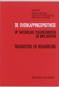 De overkappingsprothese op natuurlijke pijlerelementen en implantaten   auteur onbekend  