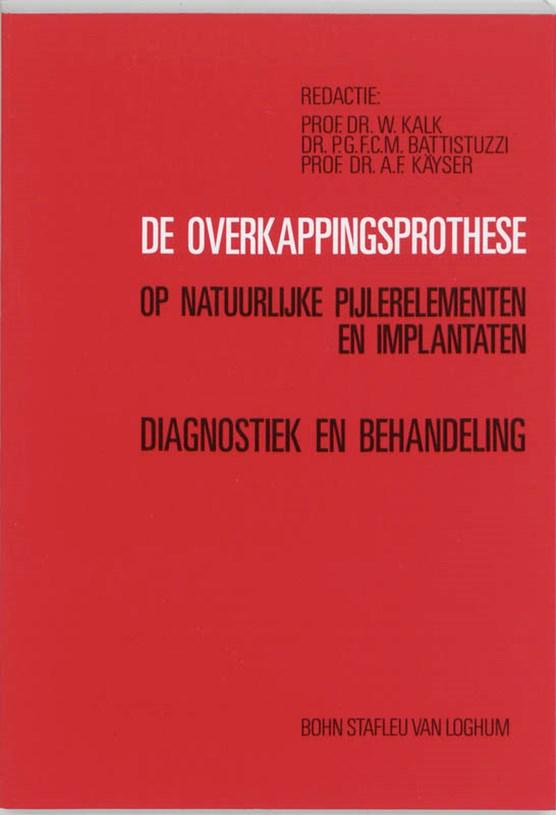 De overkappingsprothese op natuurlijke pijlerelementen en implantaten