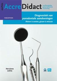 Diagnostiek van parodontale aandoeningen | Fridus van der Weijden |